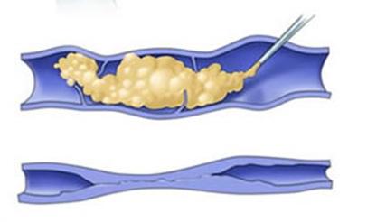 Тромбофлебит нижних конечностей лечение таблетками