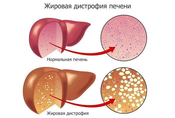 Гепатит с лечение в украине стоимость 2015